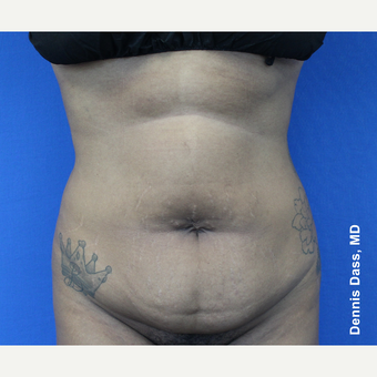 25-34 year old woman treated with Tummy Tuck before 3679968