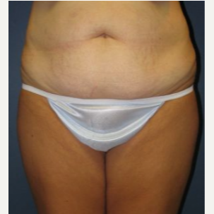 Tummy Tuck before 3720529