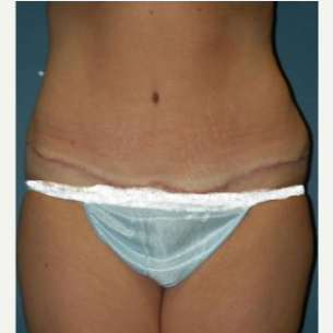 Tummy Tuck after 3720529