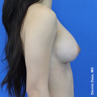 18-24 year old woman treated with Sientra Breast Implants after 3353103
