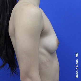 18-24 year old woman treated with Sientra Breast Implants before 3353103