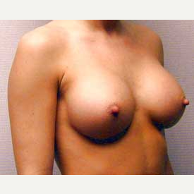 Breast Augmentation after 3680765