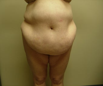 Massive Weight Loss Plastic Surgery before 594030