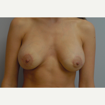 25-34 year old woman treated with Breast Augmentation after 3489938