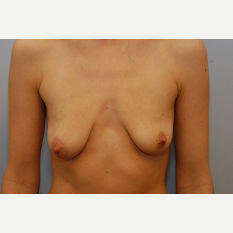 25-34 year old woman treated with Breast Augmentation before 3489938