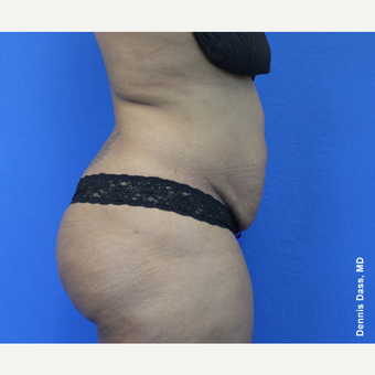 25-34 year old woman treated with Tummy Tuck before 3679771
