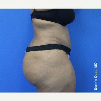 25-34 year old woman treated with Tummy Tuck after 3679771
