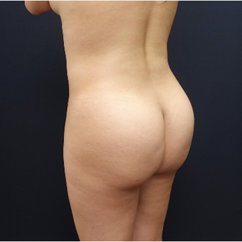 25-34 year old woman treated with Tumescent Liposuction before 3286513
