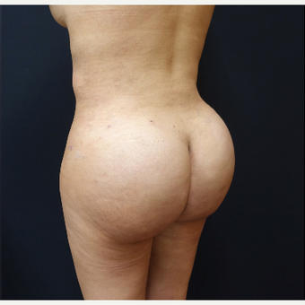 25-34 year old woman treated with Tumescent Liposuction after 3286513