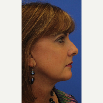 53- year old woman treated with Facelift after 3108548