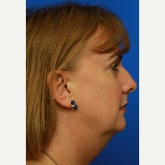 53- year old woman treated with Facelift before 3108548
