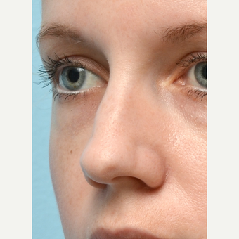 Non Surgical Rhinoplasty before 2725569