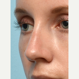 Non Surgical Rhinoplasty after 2725569