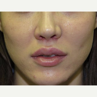25-34 year old woman treated with Lip Lift after 2315047
