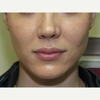 25-34 year old woman treated with Lip Lift before 2315047