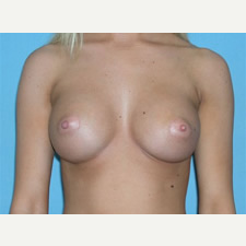 25-34 year old woman treated with Breast Augmentation after 3743304