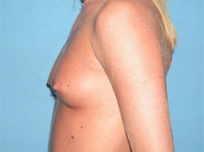 25-34 year old woman treated with Breast Augmentation 3743304