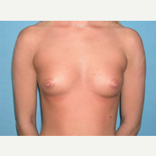 25-34 year old woman treated with Breast Augmentation before 3743304