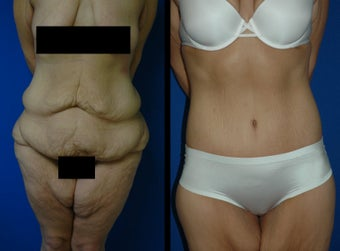 28 Year Old Woman - Body Contouring before 1104568