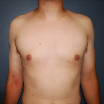 18-24 year old man treated with Male Breast Reduction after 3613626