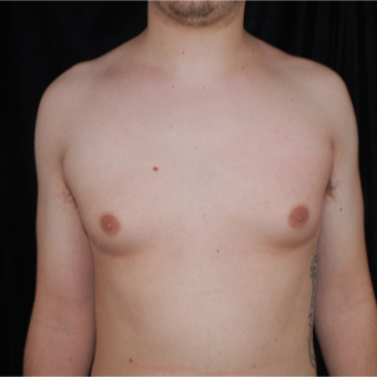18-24 year old man treated with Male Breast Reduction before 3613626
