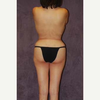45-54 year old woman treated with Butt Augmentation after 2742261