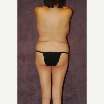 45-54 year old woman treated with Butt Augmentation before 2742261