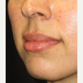 25-34 year old woman treated with Juvederm after 3153635