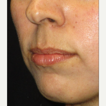 25-34 year old woman treated with Juvederm before 3153635