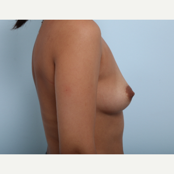 Breast Augmentation before 3377792
