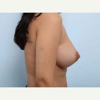 Breast Augmentation after 3377792