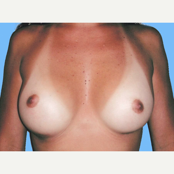 Breast Augmentation after 3731673