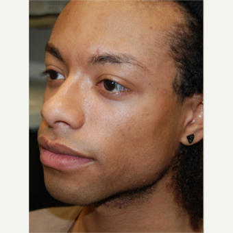 25-34 year old man treated with Silikon 1000 for permanent cheek augmentation