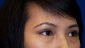 35-44 year old woman treated with Asian Eyelid Surgery