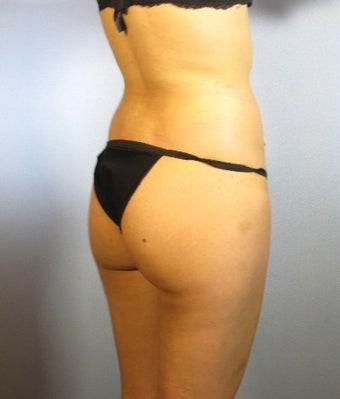 25-34 year old woman treated with Brazilian Butt Lift before 1805402