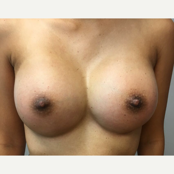 35-44 year old woman treated with Breast Augmentation after 3725884