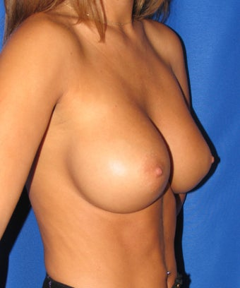 Breast Augmentation after 420151