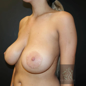 25-34 year old woman treated with Breast Implant Revision before 3109643