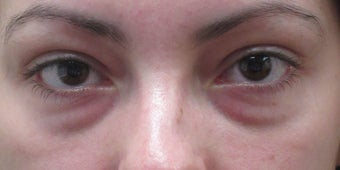 Before and after lower eyelid and cheek fillers before 3422852