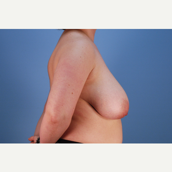 25-34 year old woman treated with Breast Reduction before 3837781