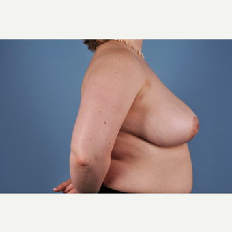 25-34 year old woman treated with Breast Reduction after 3837781