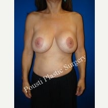 55-64 year old woman treated with Breast Implant Removal before 2225094