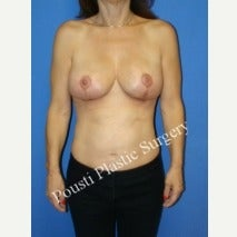 55-64 year old woman treated with Breast Implant Removal after 2225094
