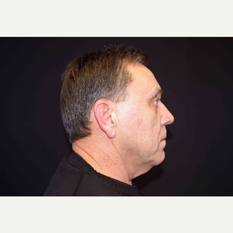55-64 year old man treated with Fat Transfer and Direct Neck Lift before 3439298