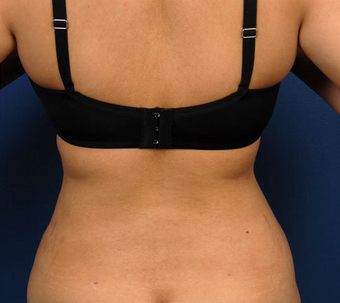 Liposuction after 417885