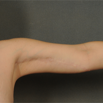 35-44 year old woman treated with Arm Lift after 3709665
