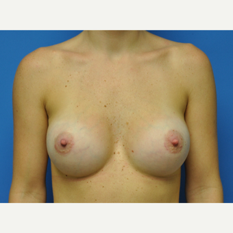30 year old woman treated with Breast Augmentation to go from 34A to 34C after 2751480