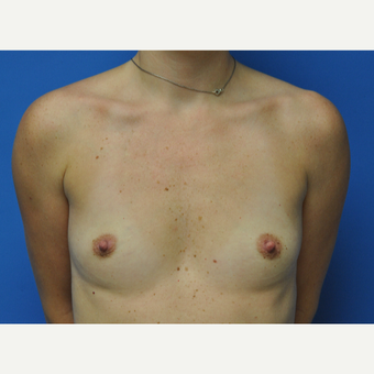 30 year old woman treated with Breast Augmentation to go from 34A to 34C before 2751480
