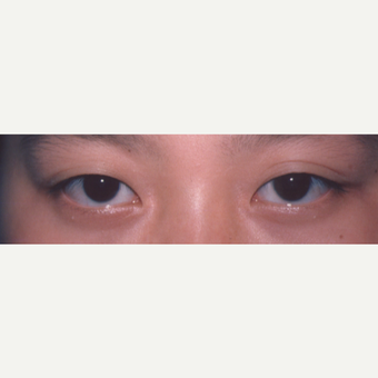 25-34 year old woman treated with Eyelid Surgery before 3544690