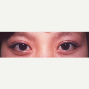 25-34 year old woman treated with Eyelid Surgery after 3544690